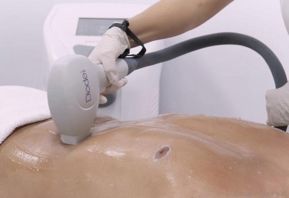 Bild über Dauerhafte Laser  Haarentfernung